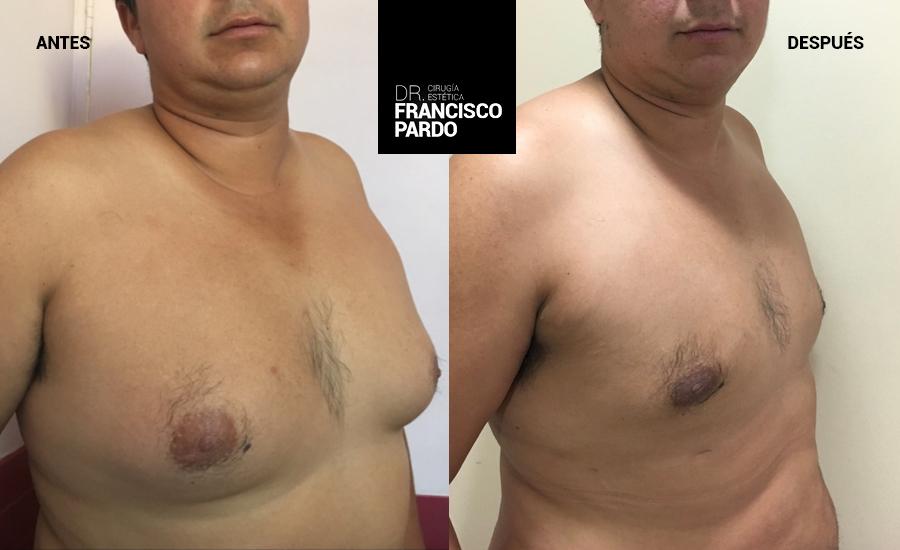 Ginecomastias - Dr Francisco Pardo